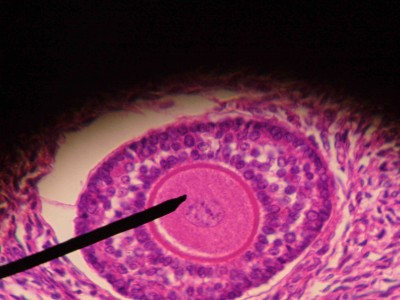 Figure 1 - Histological image of a primary follicle. The needle points to oocyte I, inside the follicle.