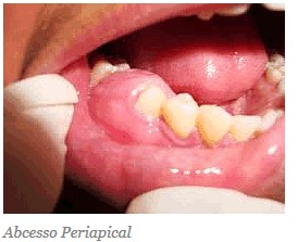 abcesso-periacal-1