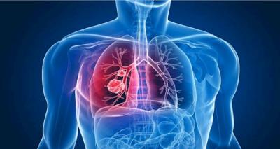tuberculose ranking lista top-10 epidemias mais mortais de sempre