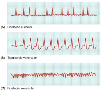Figura 1 - Traçados característicos das diferentes arritmias referidas neste artigo, obtidos por ECG. (A) fibrilação auricular; (B) taquicardia ventricular; (C) fibrilação ventricular.